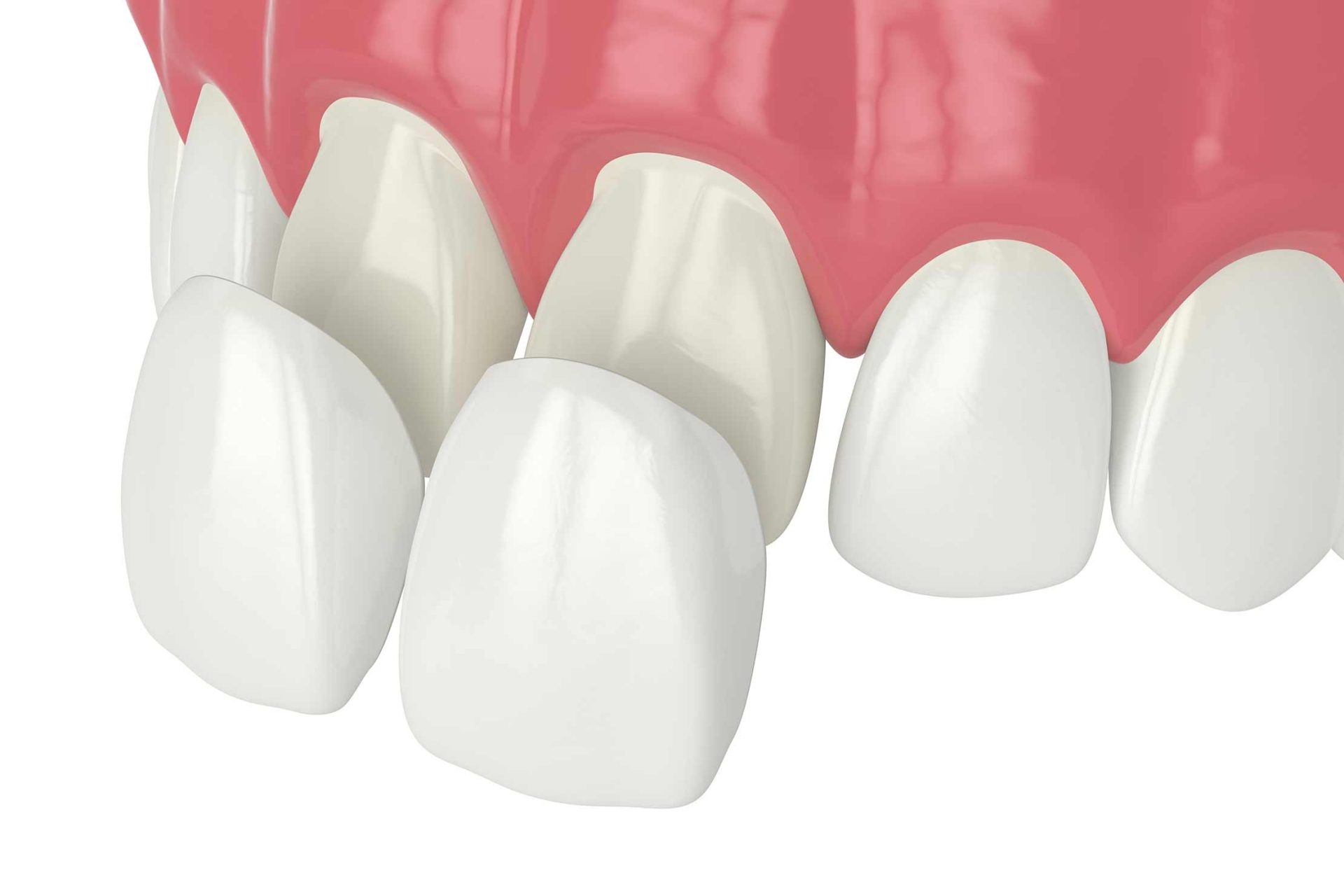 cosmetic dental restorations